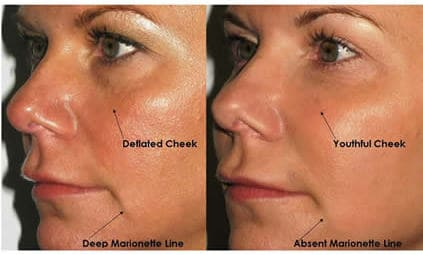 ZenHealthcare, London, vampire facelift before and after